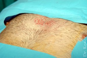body hair transplant Turkey