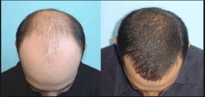 before -after-biofibre-men