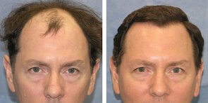 before and after hair transplant photo