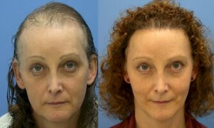 before after female hair transplant
