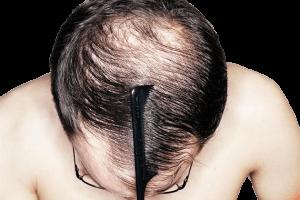 fue hair transplant men